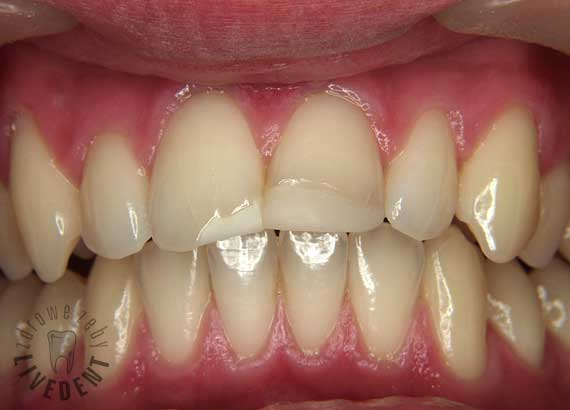 dental filling front teeth-#14